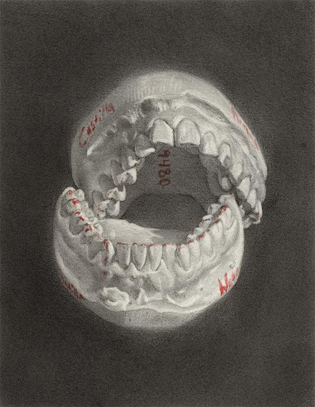 Nathan Reidt - Teeth Cast